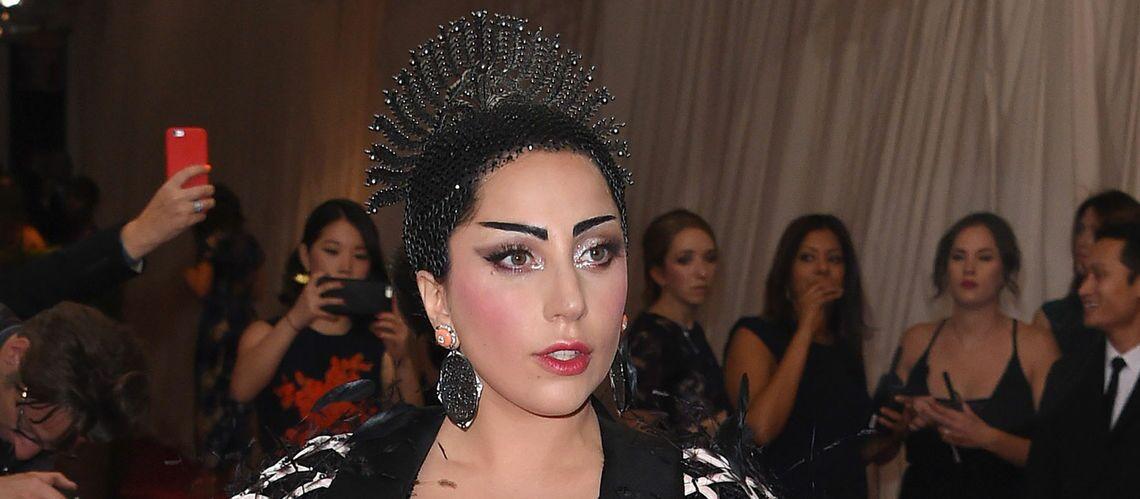 Toutes les blessures de Lady Gaga