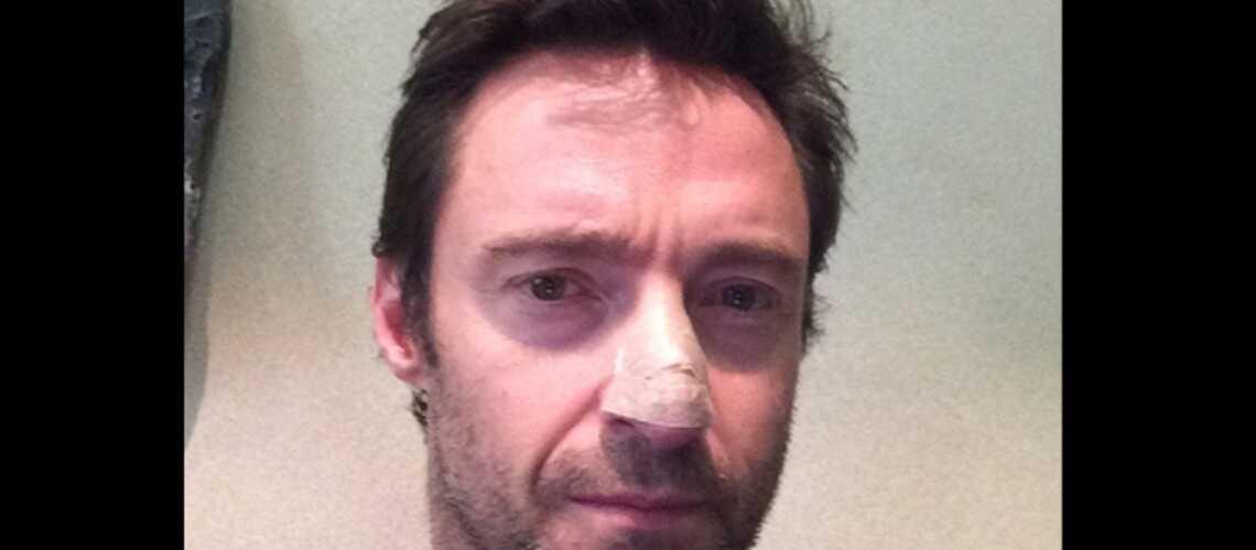 Hugh Jackman souffre d'un cancer bénin de la peau